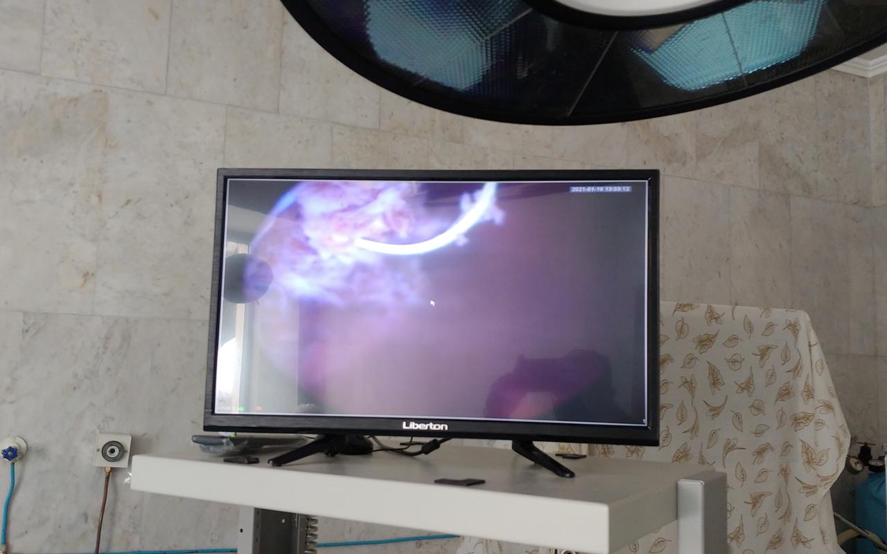 Перша трансуретральна резекці в Чернівецькій області за допомогою біполярного резектоскопа проведена в стінах нашого онкоцентру. 10