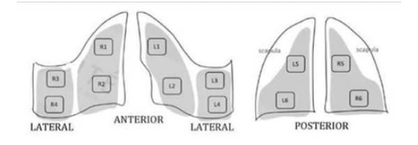 Ультразвукове дослідження легень при COVID-19 2