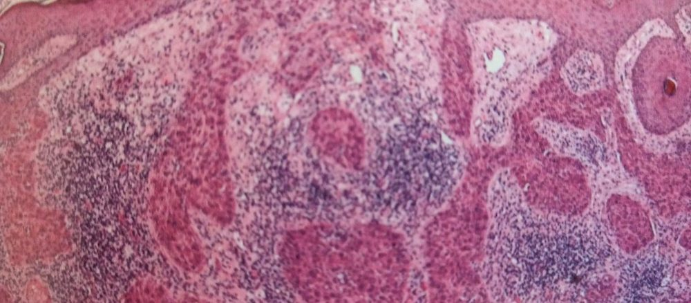 Плоскоклітинний рак шкіри та його передракові стани. 1